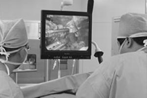 モニターを見ながら、患者さんに負担の少ない腹腔鏡下手術中の福永さん