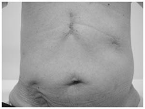 腹部上が腹腔鏡下手術の跡 右下の傷跡は虫垂炎の手術跡。胃がんの手術より虫垂炎の手術後のほうが痛かったと語る患者さん