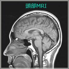頭部MRI
