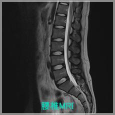 腰椎MRI