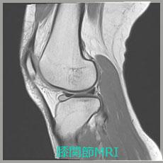 膝関節MRI