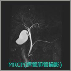 MRCP(膵管胆管撮影)